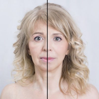 Blonde woman divided in half for skin treatments, before and after shot