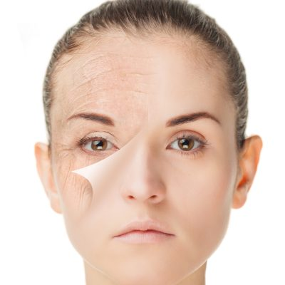 Skin care treatment before and after, rejuvenation procedure