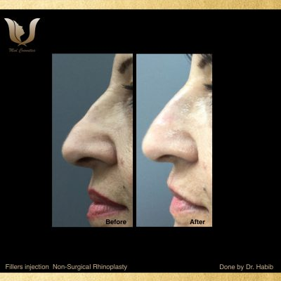 Fillers-Non surgical Rhinoplasty (2)