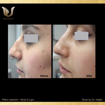 Fillers-Non surgical Rhinoplasty (3)