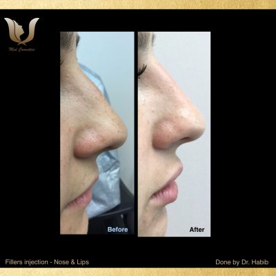 Fillers-Non surgical Rhinoplasty (4)