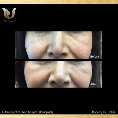Fillers-Non surgical Rhinoplasty (6)