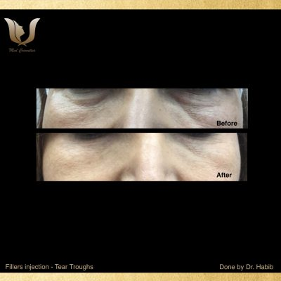 Fillers-Tear troughs (2)