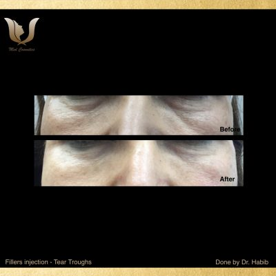 Fillers-Tear troughs (5)