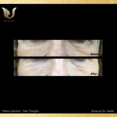 Fillers-Tear troughs (6)