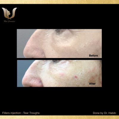 Fillers-Tear troughs (7)