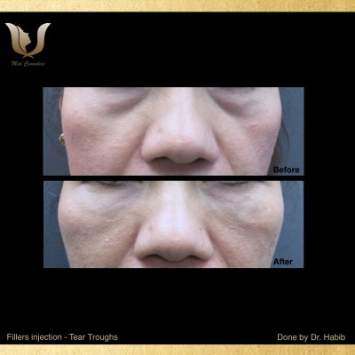 Fillers-Tear troughs (8)